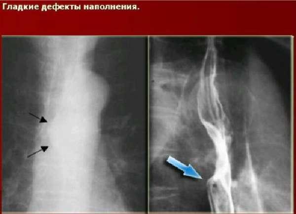 Варикоз вен пищевода на рентгене