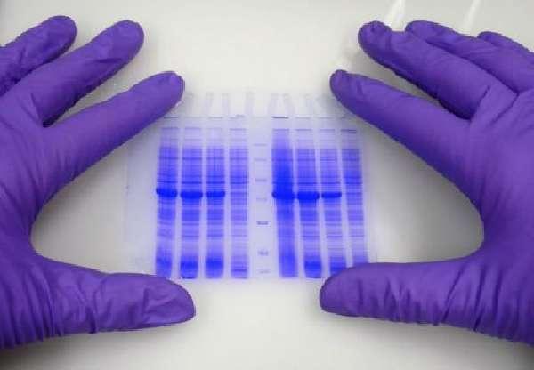 Определение антител и иммуноглобулинов