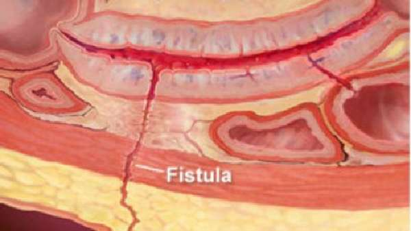Фистула