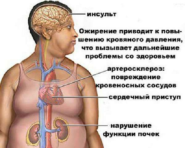 Инсульт, ожирение и атеросклероз