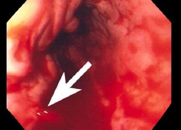 Желудочно-кишечное кровотечение