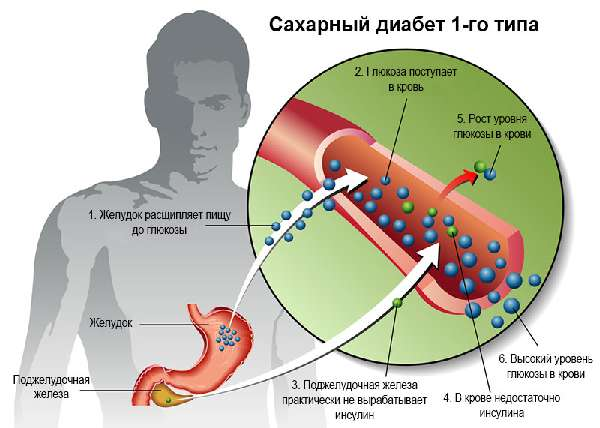 сахарный диабет 1-го типа