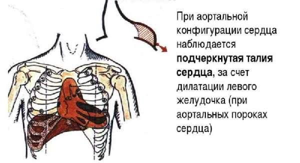 Аортальная форма сердца