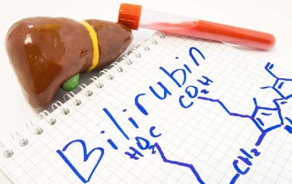 Формула билирубина