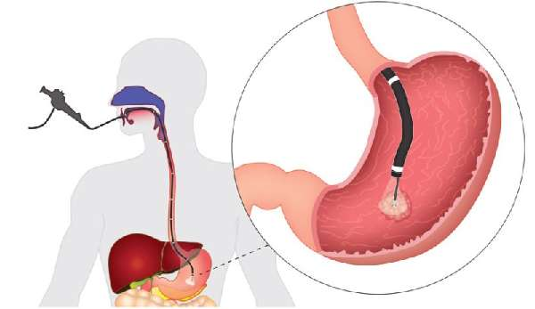 Биопсия желудка при помощи ФГДС