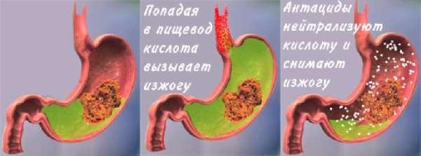 Действие антацидных препаратов