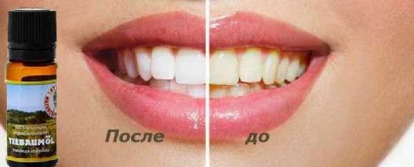 До и после применения масла чайного дерева для отбеливания зубов
