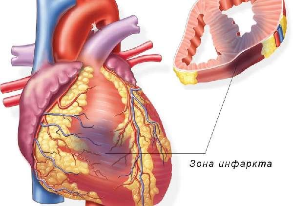 Колит около сердца