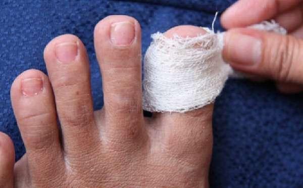 Компресс на ногте ноги