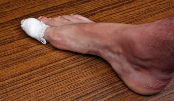 Компресс на большом пальце ноги