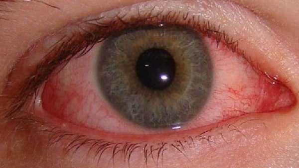Красный глаз после сварки