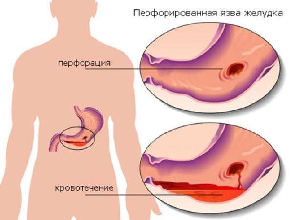 Кровотечение в желудке