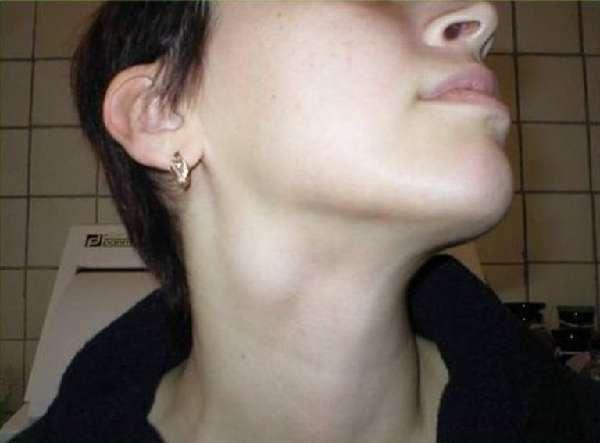 Лимфаденит на шее