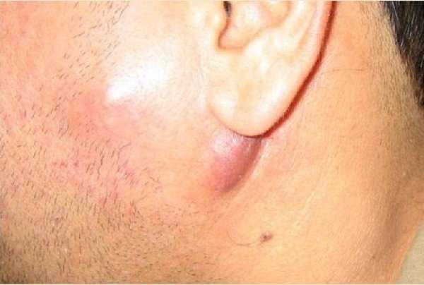 Лимфаденит за ухом