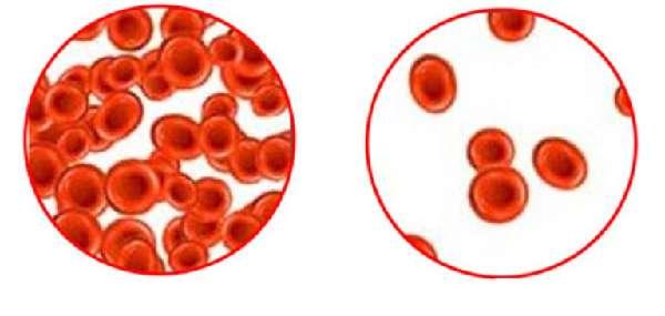Малокровие и нормальная кровь