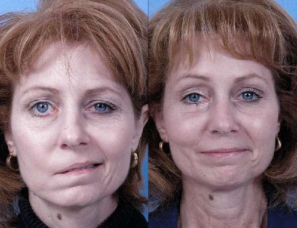 лицо при параличе лицевого нерва