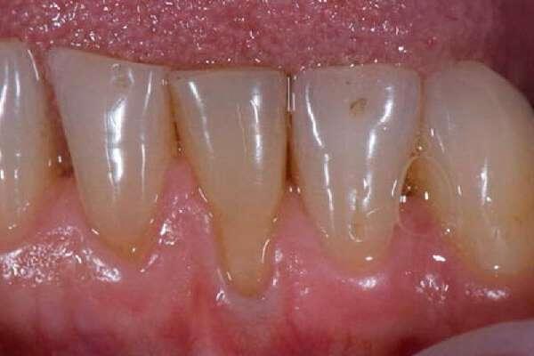 Оголенная шейка зуба