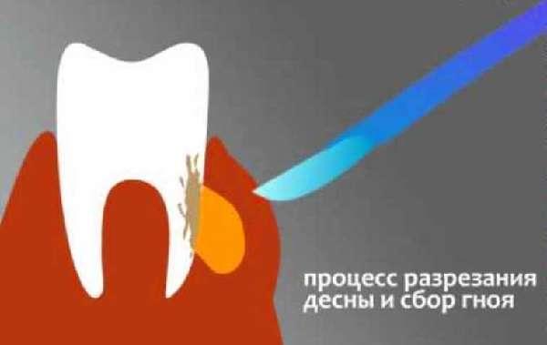 Хирургическое вмешательство при флюсе