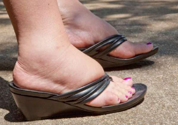 Опухли ноги в обуви
