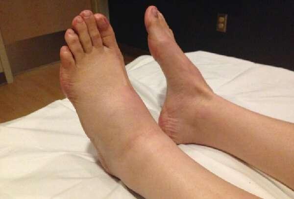 Опухли ноги