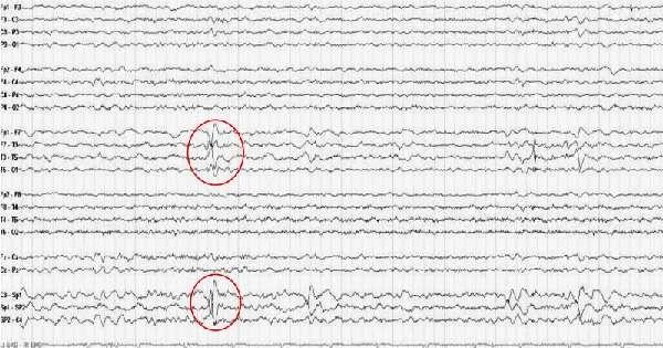 Признаки эпилепсии на ЭЭГ