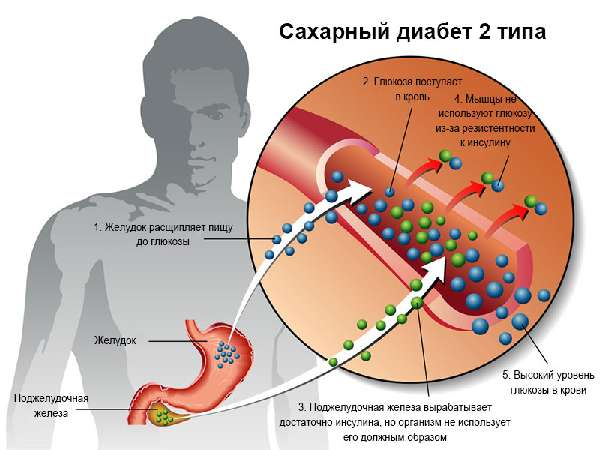 признаки 2-го типа сахарного диабета