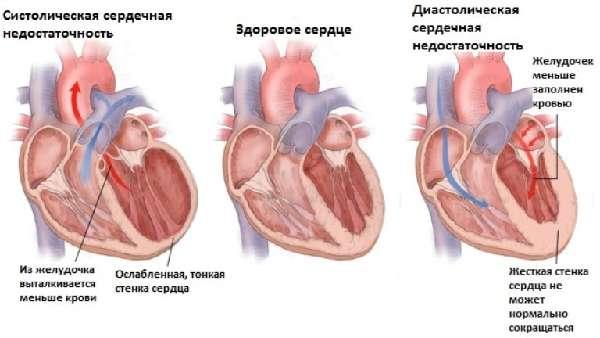 Виды сердечной недостаточности