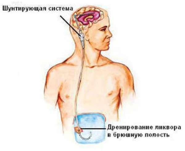 шунтирование субарахноидальной полости