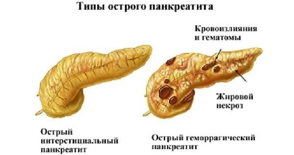 Типы острого гепатита