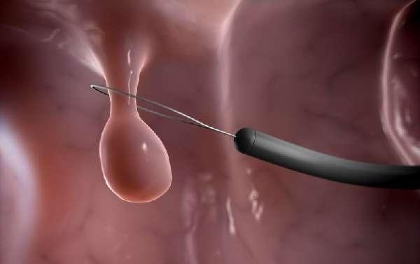 Удаление полипа в желудке