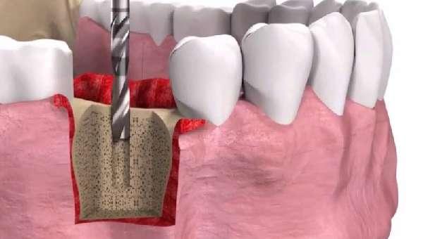 Установка заглушки для зубного имплантата