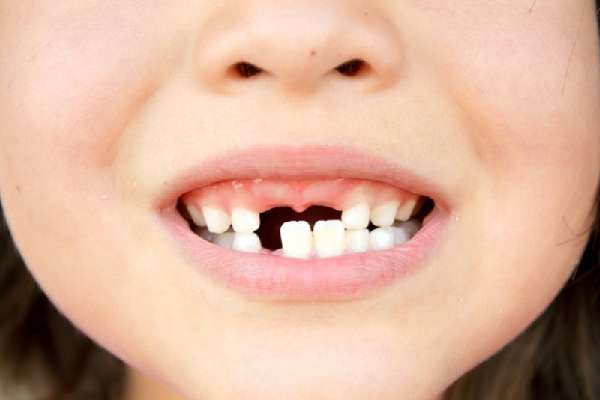 Выпали молочные зубы у ребенка