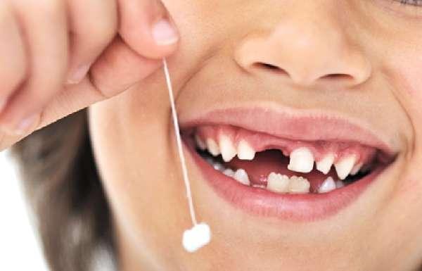 Вырванный молочный зуб