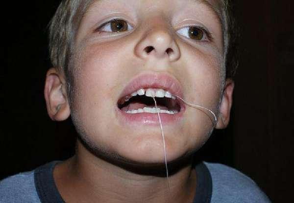 Вырывание молочного зуба ниткой