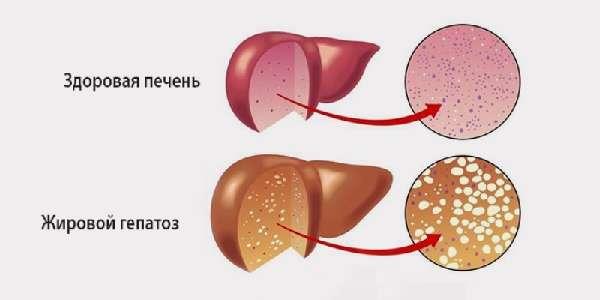 Жировой гепатоз и нормальная печень