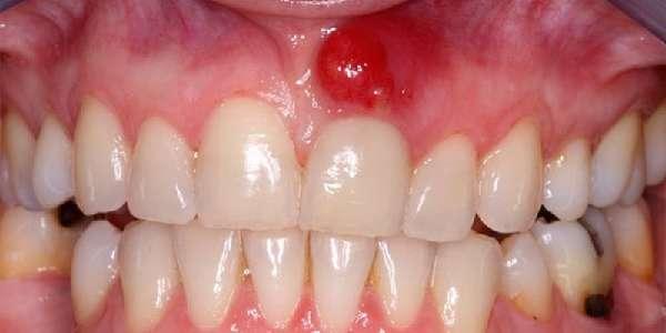 Зубная киста