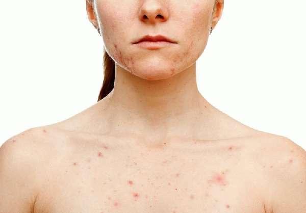 Анемия из-за эрозивного гастрита