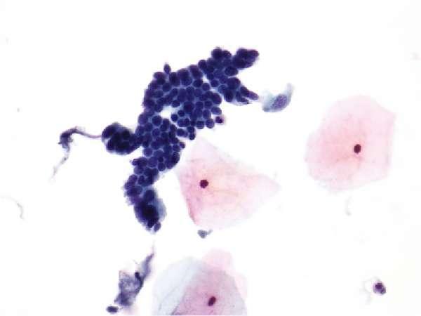 Атипичные клетки под микроскопом