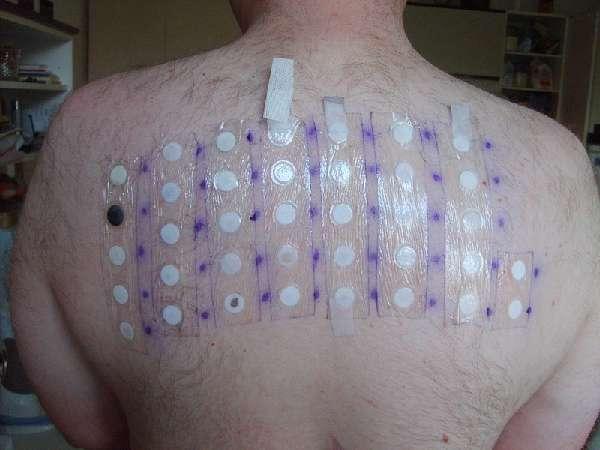 Тест на аллергены