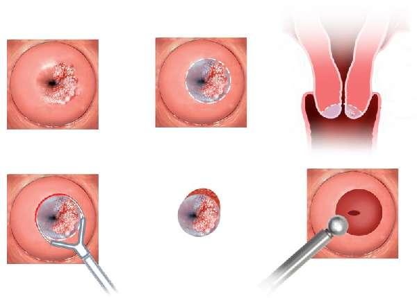 Начальная стадия рака