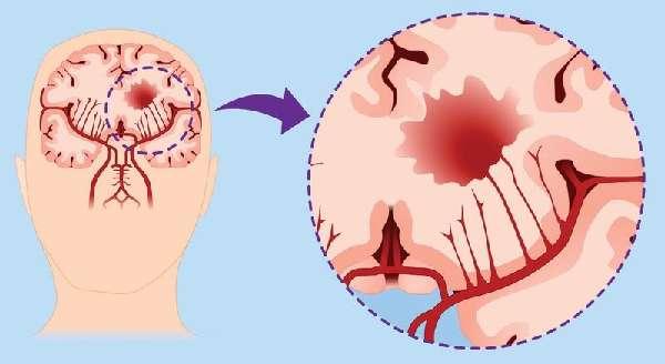 Гиперпролактинемия