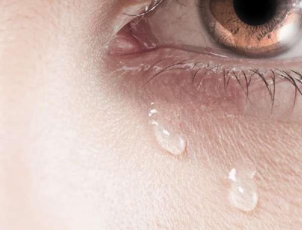 Неконтролируемое слезотечение