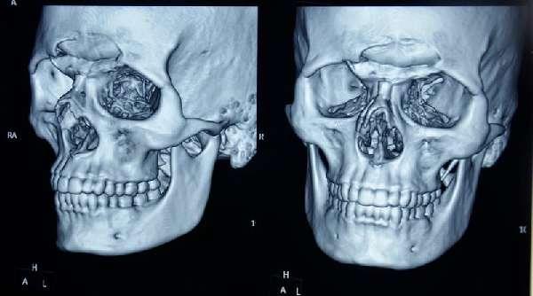 Перелом лобной кости