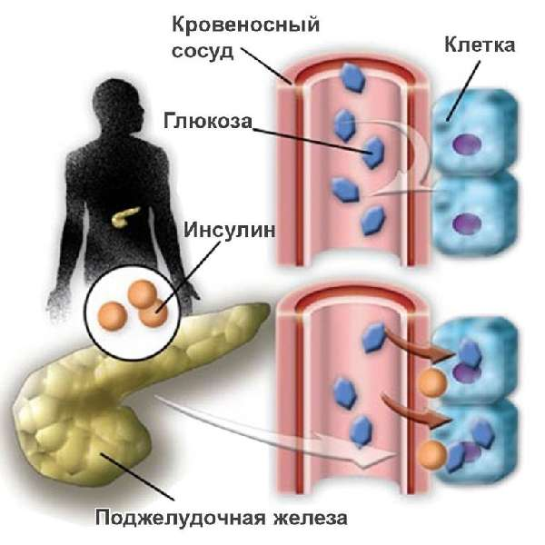 выработка инсулина поджелудочной железой