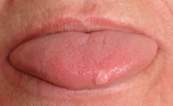шишка на кончике языка