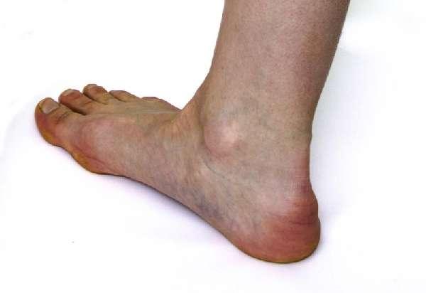Шпоры на ноге