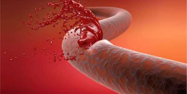 Кровоизлияние