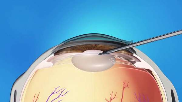 Глазной хрусталик