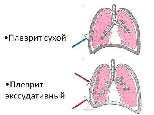 Плеврит (сухой)
