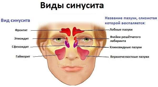 Пневматизация пазух носа сохранена: что это такое и что значит